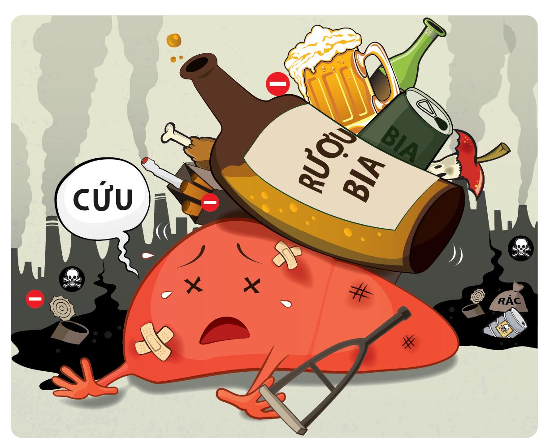 Rượu bia được coi là nguyên nhân chính dẫn tới viêm gan